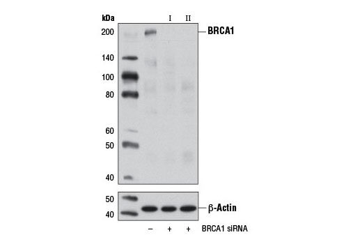 Western blot analysis of extracts from 293T cells, transfected with 100 nM SignalSilence<sup>®</sup> Control siRNA (Unconjugated) #6568 (-), SignalSilence<sup>®</sup> BRCA1 siRNA I (+), or SignalSilence<sup>® </sup>BRCA1 siRNA II #12642 (+), using BRCA1 Antibody #9010 (upper) or β-Actin (D6A8) Rabbit mAb #8457 (lower). The BRCA1 Antibody confirms silencing of BRCA1 expression, while the β-Actin (D6A8) Rabbit mAb is used as a loading control.