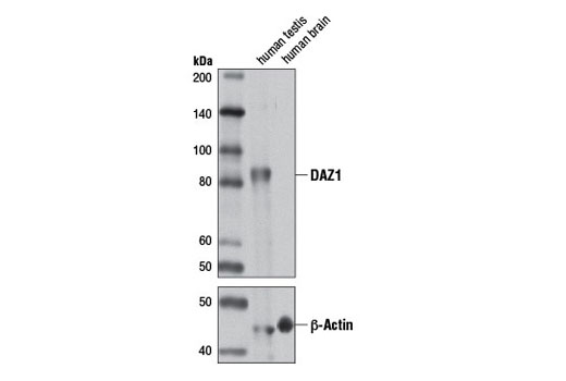 Polyclonal Antibody Immunoprecipitation Positive Regulation of Translation