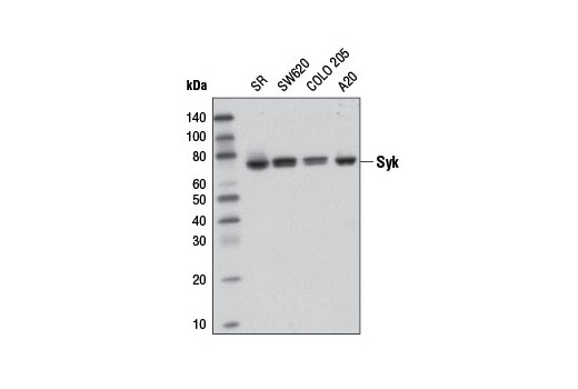 Western blot analysis of extracts from various cell lines using Syk (D1I5Q) Rabbit mAb.