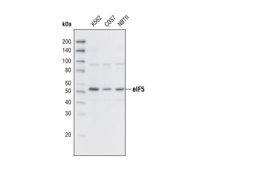 Polyclonal Antibody - eIF5 Antibody - Western Blotting, UniProt ID P55010, Entrez ID 1983 #2480