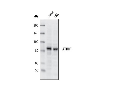Western blot analysis of extracts from Jurkat and HEL cells using ATRIP Antibody.