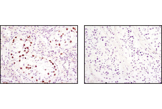 Immunohistochemical analysis of paraffin-embedded human seminoma (left) or normal testis (right), showing nuclear localization using Oct-4 Antibody.