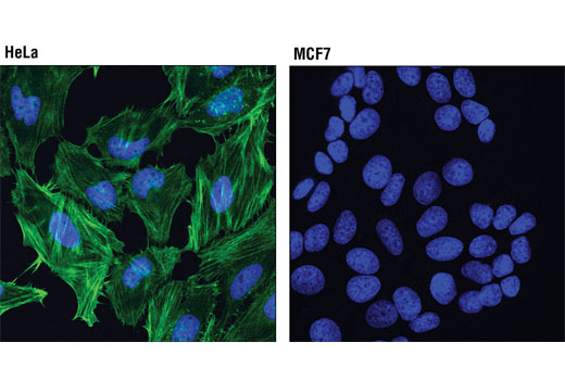 Confocal immunofluorescent analysis of HeLa (left) and MCF7 (right) cells using Caldesmon-1 (D5C8D) XP<sup>®</sup> Rabbit mAb (green). Blue pseudocolor = DRAQ5<sup>®</sup> #4084 (fluorescent DNA dye).