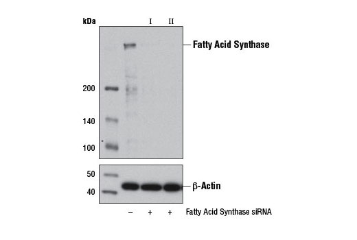 Image 1: SignalSilence® Fatty Acid Synthase siRNA I