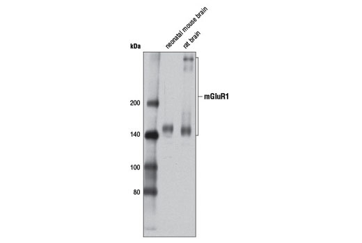 Western blot analysis of extracts from neonatal mouse brain and rat brain using mGluR1 (D5H10) Rabbit mAb.