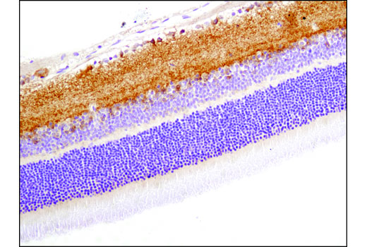 Immunohistochemical analysis of paraffin-embedded rat retina using mGlur1 (D5H10) Rabbit mAb.