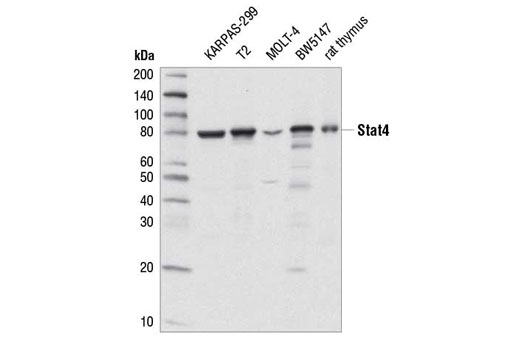 Western blot analysis of extracts from various cell lines and from rat thymus using Stat4 (C46B10) Rabbit mAb.