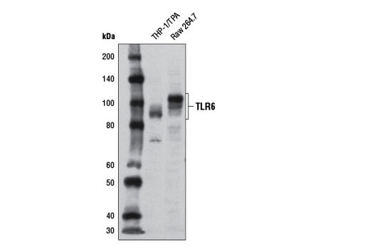 Western blot analysis of extracts from THP-1 cells differentiated overnight with 80 nM TPA (12-O-Tetradecanoylphorbol-13-Acetate) #4174 and Raw 264.7 cells using Toll-like Receptor 6 (D1Z8B) Rabbit mAb.