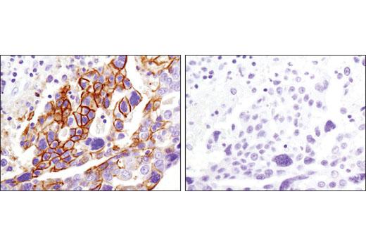 Monoclonal Antibody - CD82 (D7G6H) Rabbit mAb, UniProt ID P27701, Entrez ID 3732 #12439, Cd Markers