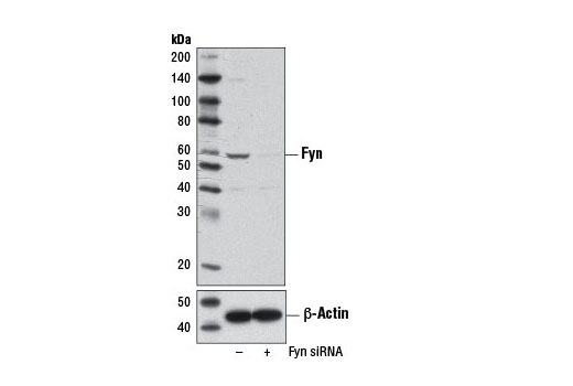 Western blot analysis of extracts from 293T cells, transfected with 100 nM SignalSilence<sup>®</sup> Control siRNA (Unconjugated) #6568 (-) or SignalSilence<sup>®</sup> Fyn siRNA I (+), using Fyn Antibody #4023 (upper) or β-Actin (D6A8) Rabbit mAb #8457 (lower). The Fyn Antibody confirms silencing of Fyn expression, while the β-Actin (D6A8) Rabbit mAb is used as a loading control.