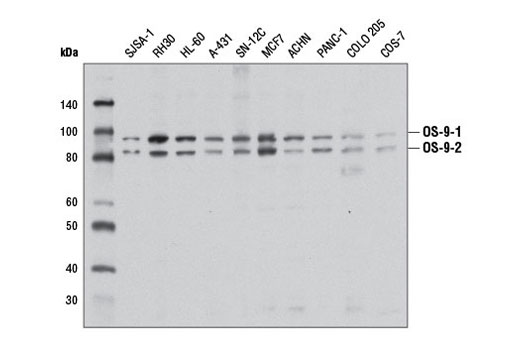 Monoclonal Antibody - OS-9 (D8P4G) Rabbit mAb - Immunoprecipitation, Western Blotting, UniProt ID Q13438, Entrez ID 10956 #12497 - Protein Folding and Trafficking