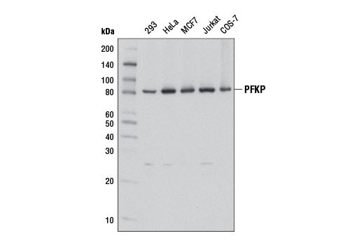 Western blot analysis of extracts from various cell lines using PFKP (D2E5) Rabbit mAb.