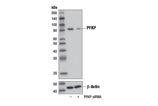 Western blot analysis of extracts from 293T cells, transfected with 100 nM SignalSilence® Control siRNA (Unconjugated) #6568 (-) or SignalSilence® PFKP siRNA (+), using PFKP (D2E5) Rabbit mAb and β-Actin (D6A8) Rabbit mAb #8457.