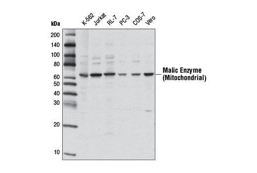 Western blot analysis of extracts from various cell lines using Malic Enzyme 2 Antibody.