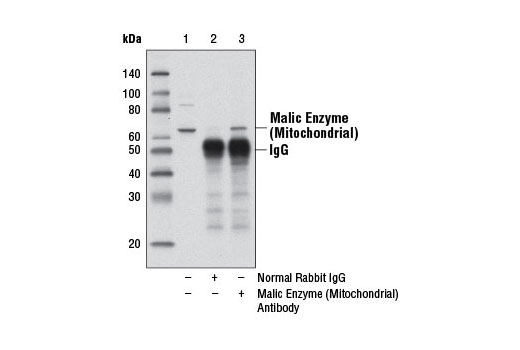 Immunoprecipitation of malic enzyme (mitochondrial) from 293 cell extracts, using Normal Rabbit IgG #2729 (lane 2) or Malic Enzyme 2 Antibody (lane 3). Lane 1 is 10% input. Western blot analysis was performed using Malic Enzyme 2 Antibody.