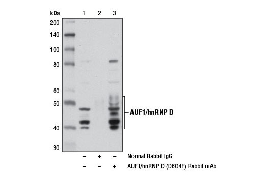 Immunoprecipitation of AUF1 from HT-29 cell extracts using Normal Rabbit IgG #2729 (lane 2) or AUF1/hnRNP D (D6O4F) Rabbit mAb (lane 3). Lane 1 is 10% input. Western blot analysis was performed using AUF1/hnRNP D (D6O4F) Rabbit mAb and Mouse Anti-rabbit IgG (Conformation Specific) (L27A9) mAb #3678.