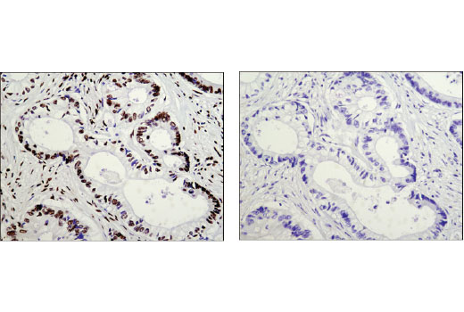 Immunohistochemical analysis of paraffin-embedded human colon carcinoma using AUF1/hnRNP D (D6O4F) Rabbit mAb in the presence of control peptide (left) and antigen-specific peptide (right).
