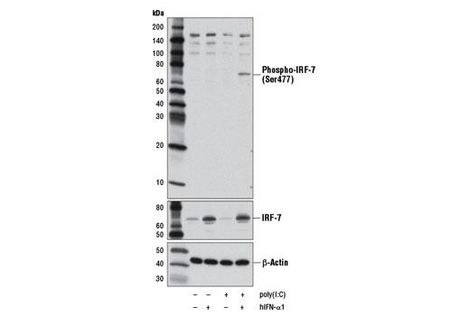 Western blot analysis of extracts from HT-29 cells, untreated or treated with Human Interferon-α1 (hIFN-α1) #8927 (10 ng/ml, overnight) followed by transfection with poly(I:C) (2.5 μg/ml, 7 hr), as indicated, using Phospho-IRF-7 (Ser477) (D7E1W) Rabbit mAb (upper), IRF-7 Antibody #4920 (middle), or β-Actin (D6A8) Rabbit mAb #8457 (lower).