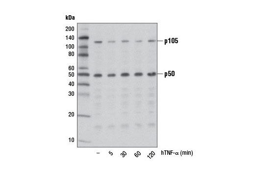 NF-κB Family Member Antibody Sampler Kit, UniProt ID P19838, Entrez ID 4790 #4766 - Immunology and Inflammation