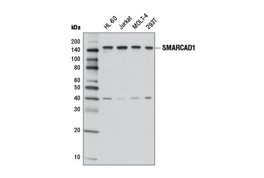 Polyclonal Antibody Western Blotting Chromosome Separation - count 4