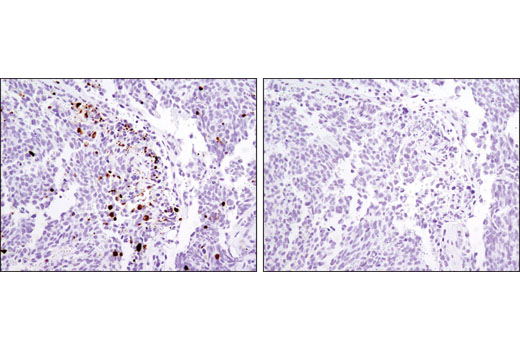 Immunohistochemical analysis of paraffin-embedded Kelly xenograft using Cleaved Caspase-3 (Asp175) (D3E9) Rabbit mAb #9579 (left) or Rabbit (DA1E) mAb IgG XP<sup>®</sup> SignalStain<sup>®</sup> Isotype Control #12960 (right).
