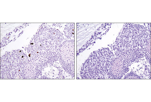 Immunohistochemical analysis of paraffin-embedded E14 mouse embryo using Cleaved Caspase-3 (Asp175) (D3E9) Rabbit mAb #9579 (left) or Rabbit (DA1E) mAb IgG XP<sup>®</sup> SignalStain<sup>®</sup> Isotype Control #12960 (right).