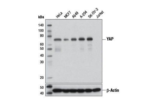 Western blot analysis of extracts from various cell lines using YAP (1A12) Mouse mAb (upper) and β-actin (D6A8) Rabbit mAb #8457 (lower).