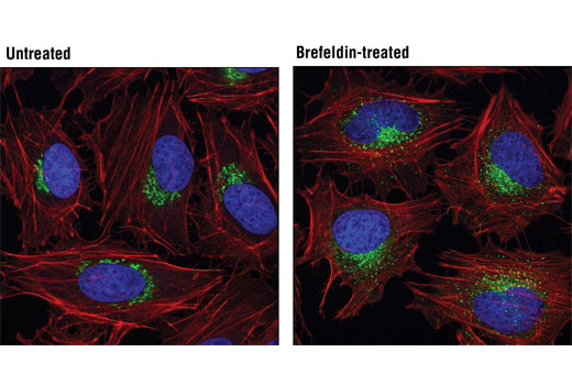 Confocal immunofluorescent analysis of HeLa cells, untreated (left) or treated with Brefeldin A #9972 (200 μM, 30 min; right), using GM130 (D6B1) XP<sup>®</sup> Rabbit mAb (green). Actin filaments were labeled with DY-554 phalloidin (red). Blue pseudocolor = DRAQ5<sup>®</sup> #4084 (fluorescent DNA dye).