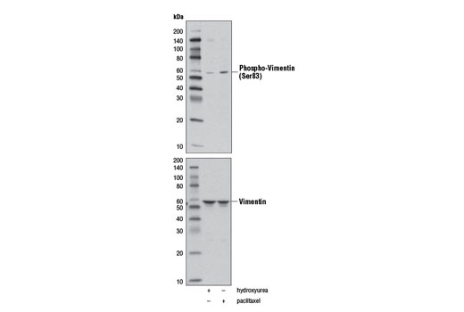 Western blot analysis of extracts from HeLa cells, untreated (-), or treated with either hydroxyurea (4 mM, G1/S arrested; +), or Paclitaxel #9807 (100 nM, G2/M arrested; +) for 20 hr, using Phospho-Vimentin (Ser83) (D5A2D) Rabbit mAb (upper) and Vimentin (D21H3) XP<sup>®</sup> Rabbit mAb #5741 (lower).