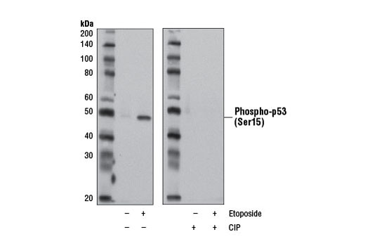 Western blot analysis of extracts from L-929 cells, untreated (-) or treated with Etoposide #2200 (30 μM, 2 hr; +), using Phospho-p53 (Ser15) (D4S1H) Rabbit mAb (Rodent Specific). To characterize the phospho-specificity of the antibody, the blot was mock treated (-) or treated (+) with calf intestinal phosphatase (CIP).
