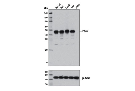 Western blot analysis of extracts from various cell lines using PAX5 (D7H5X) XP<sup>®</sup> Rabbit mAb (upper) and β-actin (D6A8) Rabbit mAb #8457 (lower).