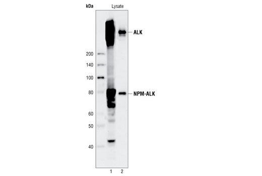 Figure 3. Kit specificity as demonstrated by western analysis of the ELISA microwell captured protein. Human Karpas299 cell lysates were incubated in microwells coated with ALK capture antibody. Following washing, captured protein was solubilized in SDS gel loading buffer. Karpas299 cell lysates (lane 1) and captured protein (lane 2) were analyzed by western blot using the ALK detection antibody. A pair of distinct bands in the captured material (lane 2) correspond to both ALK protein and NPM-ALK fusion protein. Cell Line Source: Dr Abraham Karpas at the University of Cambridge.