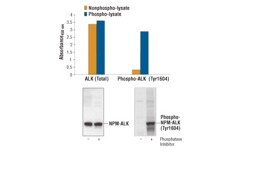 Figure 1: Constitutive phosphorylation of NPM-ALK in Karpas299 cells lysed in the presence of phosphatase inhibitors (phospho-lysate) is detected by PathScan<sup>®</sup> Phospho-ALK (Tyr1604) Sandwich ELISA Kit #7324 (top,right). In contrast, only a low level of phospho-NPM-ALK protein is detected in Karpas299 cells lysed without addition of phosphatase inhibitors to the lysis buffer (nonphospho-lysate). However, similar levels of NPM-ALK protein from either nonphospho- or phospho-lysates are detected by PathScan® Total ALK Sandwich ELISA Kit #7322 (top,left). Absorbance at 450 nm is shown in the top figure, while the corresponding western blots using Phospho-ALK (Tyr1604) Antibody #3341 (right) or a Total ALK Rabbit mAb #3337 (left) are shown in the bottom figure. Cell Line Source: Dr Abraham Karpas at the University of Cambridge.