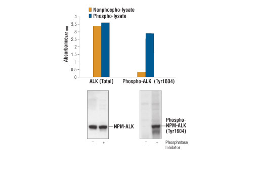 Figure 1: Constitutive phosphorylation of NPM-ALK in Karpas299 cells lysed in the presence of phosphatase inhibitors (phospho-lysate) can be detected by PathScan<sup>®</sup> Phospho-ALK (Tyr1604) Sandwich ELISA Kit #7324. In contrast, only a low level of phospho-NPM-ALK protein is detected in Karpas299 cells lysed without addition of phosphatase inhibitors to the lysis buffer (nonphospho-lysate). However, similar levels of total NPM-ALK protein from either nonphospho or phospho-lysates can be detected by PathScan<sup>®</sup> Total ALK Sandwich ELISA Kit #7322. Absorbance at 450 nm is shown in the top figure, while the corresponding Western blots using Phospho-ALK (Tyr1604) Antibody #3341 (right panel) or a total ALK Rabbit mAb #3333 (left panel), are shown in the bottom figure.