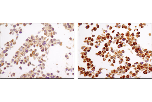 Immunohistochemical analysis of paraffin-embedded NIH/3T3 cell pellets, control (left) or chloroquine-treated (right), using LC3A/B (D3U4C) XP® Rabbit mAb.