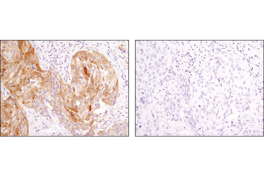 Immunohistochemical analysis of paraffin-embedded human squamous cell lung carcinoma using LC3A/B (D3U4C) XP® Rabbit mAb in the presence of control peptide (left) or antigen-specific peptide (right).