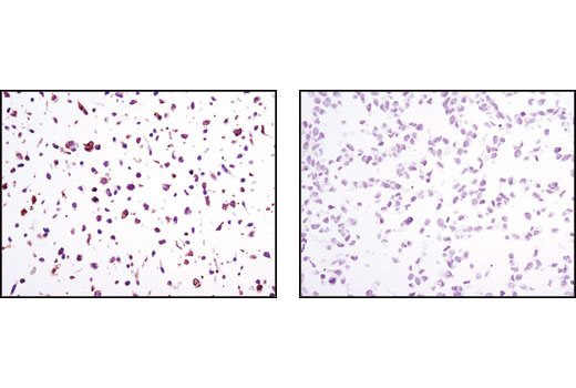 Immunohistochemical analysis of paraffin-embedded NIH/3T3/TrkB (left) or NIH/3T3/TrkA (right) cell pellets using TrkB (80G2) Rabbit mAb.