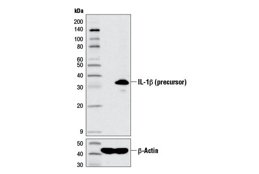 Western blot analysis of extracts from THP-1 cells, untreated (-) or LPS-treated (100 ng/ml, 3 hr; +), using IL-1β (D3U3E) Rabbit mAb (upper) and β-Actin (D6A8) Rabbit mAb #8457 (lower).