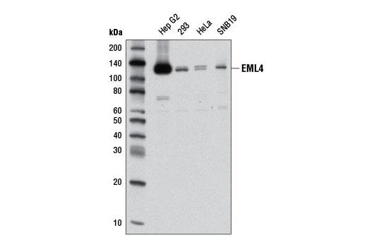 Monoclonal Antibody - EML4 (D5V6M) Rabbit mAb, UniProt ID Q9HC35, Entrez ID 27436 #12548, Cytoskeletal Signaling