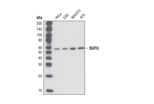 Image 9: Hedgehog Signaling Antibody Sampler Kit