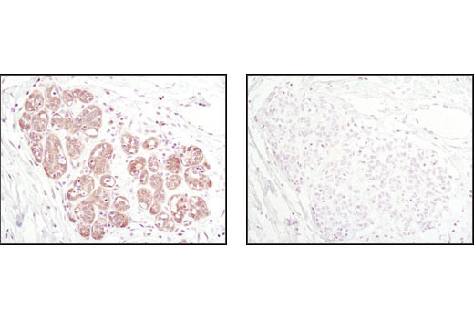 Immunohistochemical analysis of paraffin-embedded human breast carcinoma using Thioredoxin 1 (C63C6) Rabbit mAb in the presence of control peptide (left) or Thioredoxin Blocking Peptide #1057 (right).
