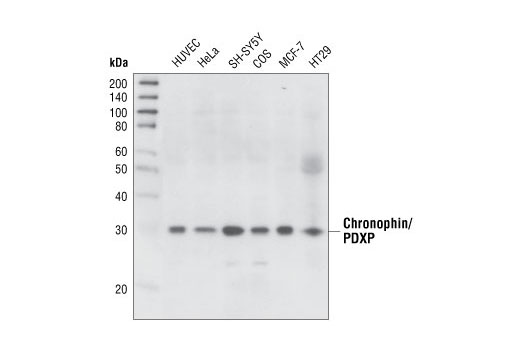 Western blot analysis of extracts from various cell types using Chronophin/PDXP (C85E3) Rabbit mAb.