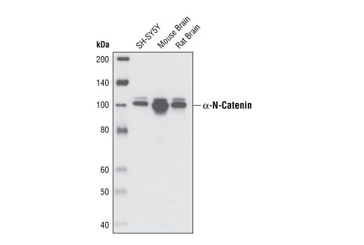 Western blot analysis of extracts from SH-SY5Y cells, mouse brain and rat brain using α-N-Catenin (C12G4) Rabbit mAb.