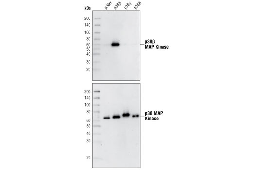 Image 1: p38 MAPK Isoform Activation Antibody Sampler Kit