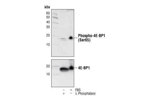Monoclonal Antibody Immunoprecipitation 4E-BP1 - count 4