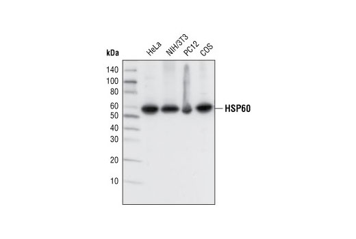 Western blot analysis of extracts from various cell types using HSP60 (D85) Antibody.