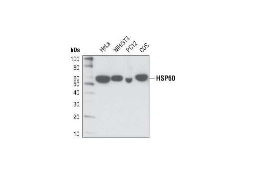 Western blot analysis of extracts from various cell types using HSP60 (D307) Antibody.