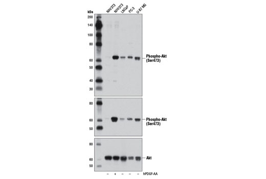 Western blot analysis of extracts from various cell lines, untreated (-) or treated with Human Platelet-Derived Growth Factor AA (hPDGF-AA) #8913 (100 ng/ml, 15 min; +), using Phospho-Akt (Ser473) (D9W9U) Mouse mAb (upper), Phospho-Akt (Ser473) (D9E) XP<sup>®</sup> Rabbit mAb #4060 (middle), and Akt (pan) (40D4) Mouse mAb #2920 (lower).