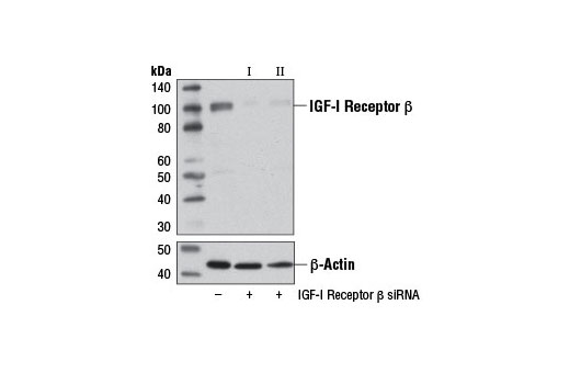 SignalSilence® IGF-I Receptor β siRNA I (Mouse Specific) - Transfection, UniProt ID Q60751, Entrez ID 16001 #12482 - #12482
