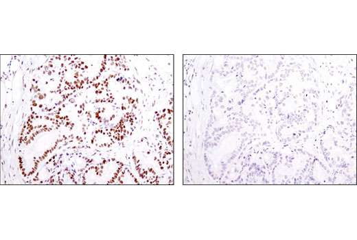 IHC-P (paraffin) Image 27 - Acetyl-Histone Antibody Sampler Kit